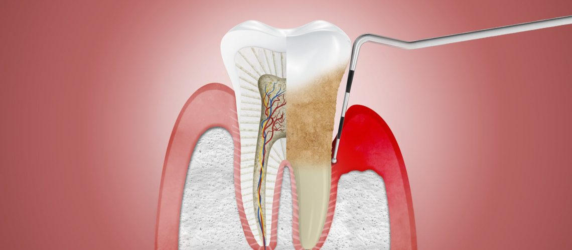 What do you need to know about Periodontal diseases?